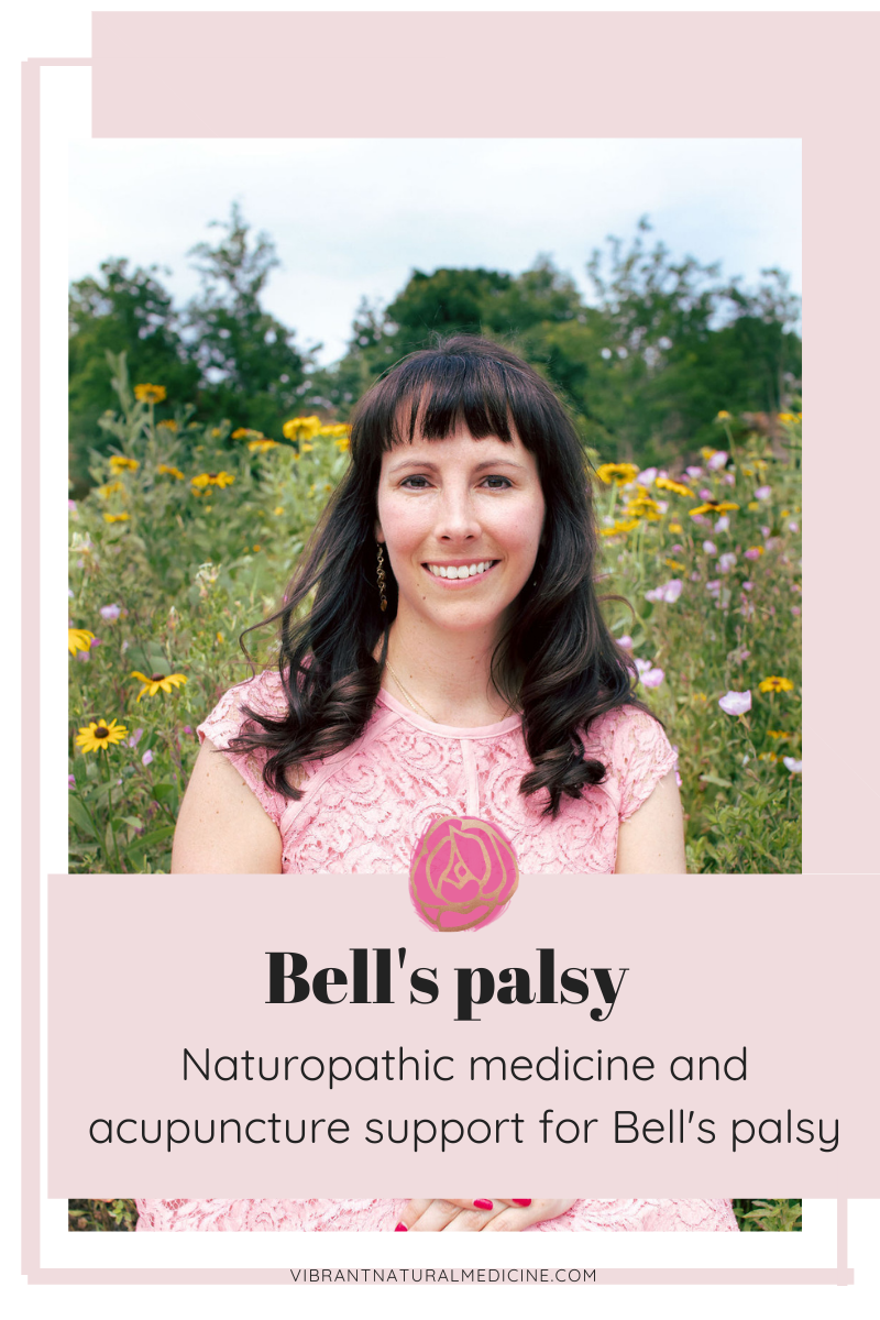 Bell's palsy acupuncture